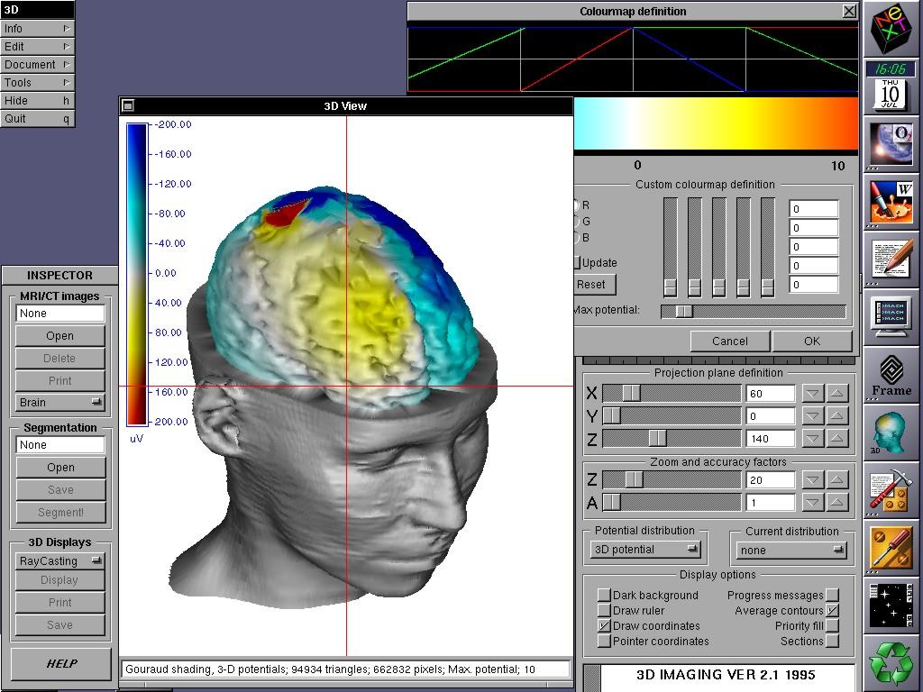 医用画像と信号の3次元可視化